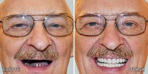 Tandbehandling i udlandet